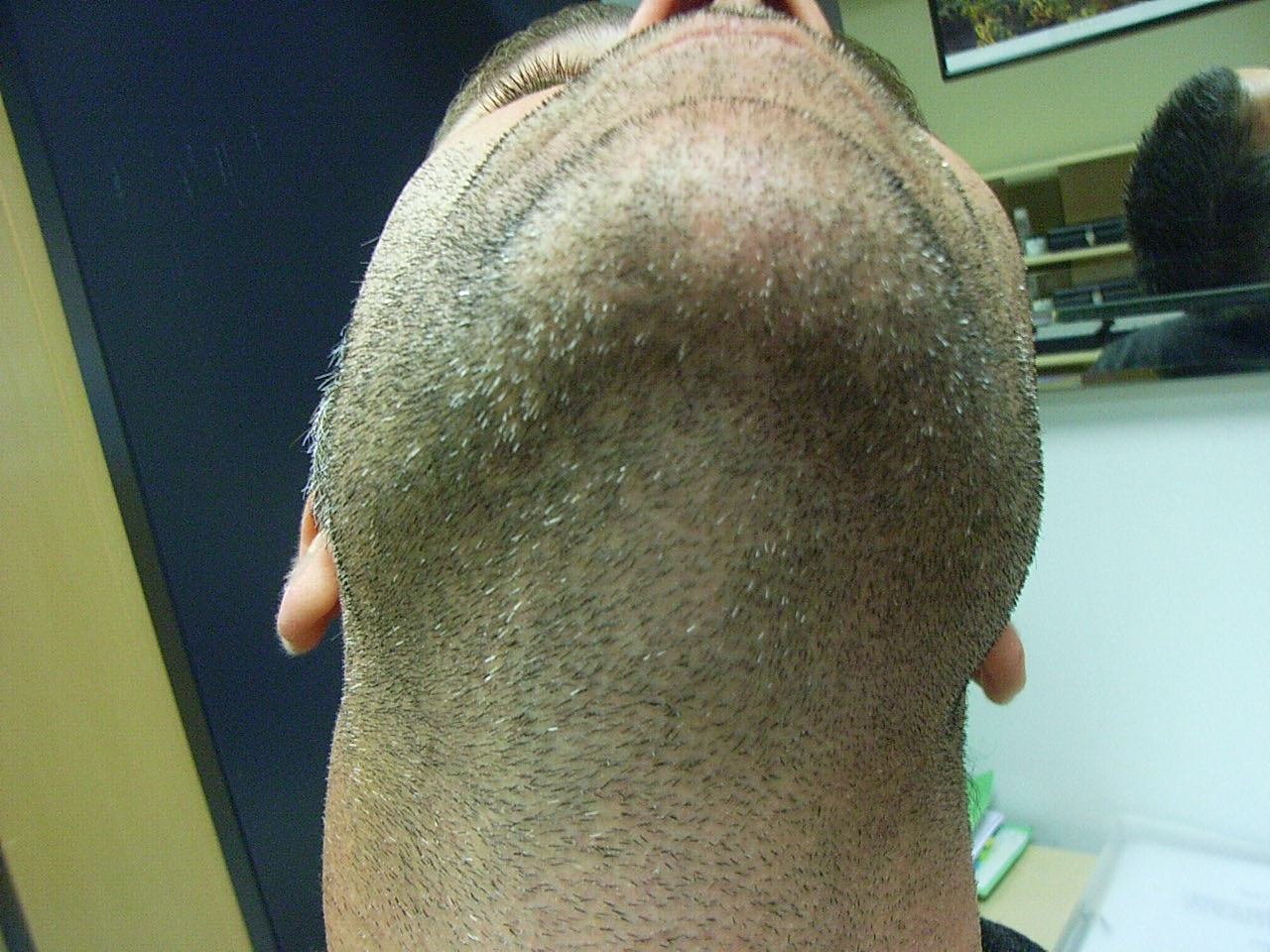 Alopecia Barbae AFTER