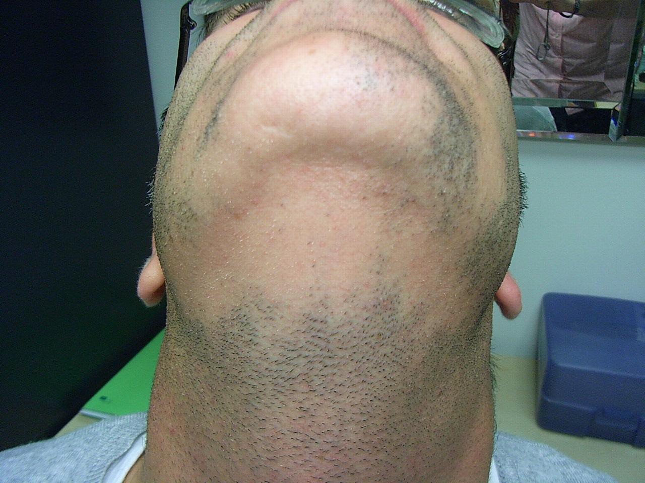 Alopecia Barbae BEFORE